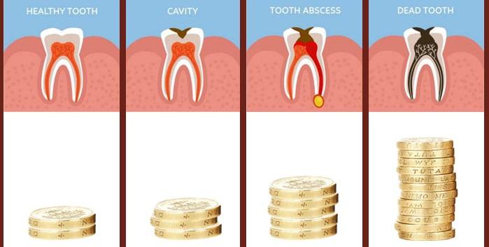 Het belang van een tandartsverzekering