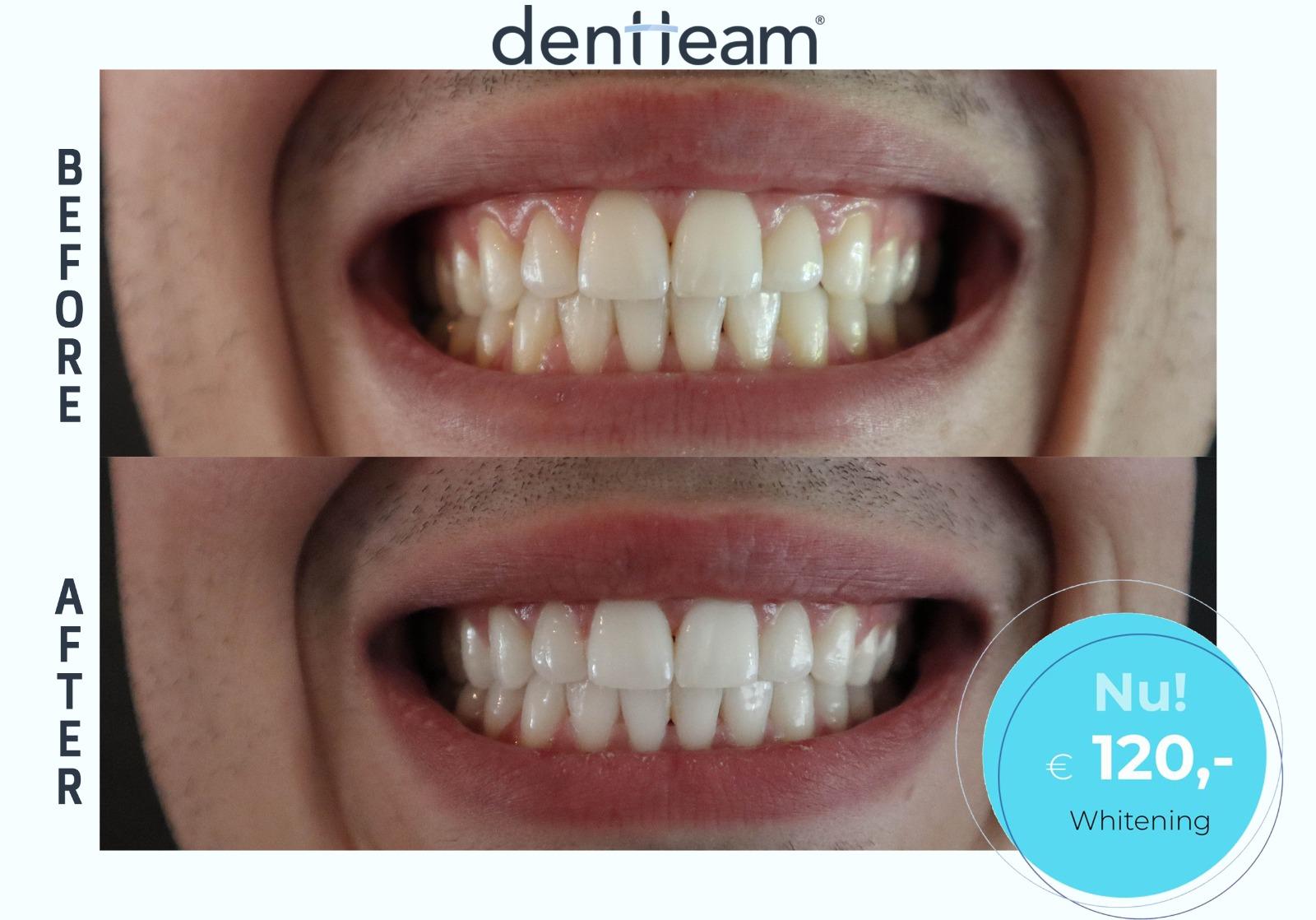 Is het bleken van tanden schadelijk?