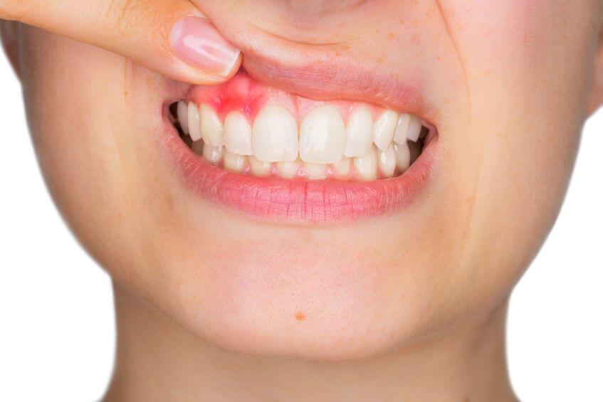 Heeft u last van gevoelig tandvlees?